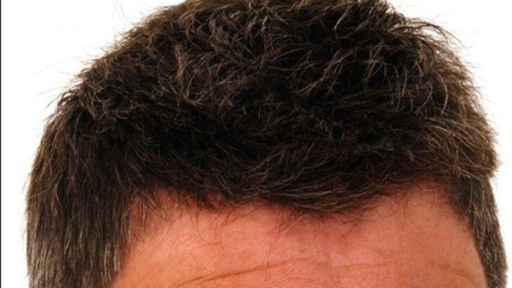 Saç ekim işlemi pahalı bir işlem midir?