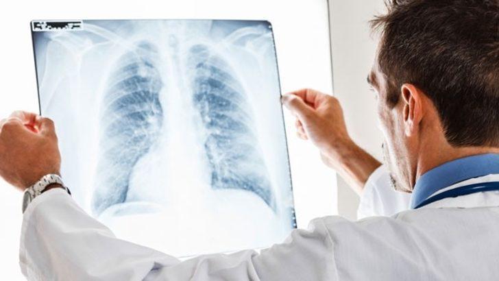 Akciğerde sıvı toplanmasına akciğer kateteri (IPC) uygulaması