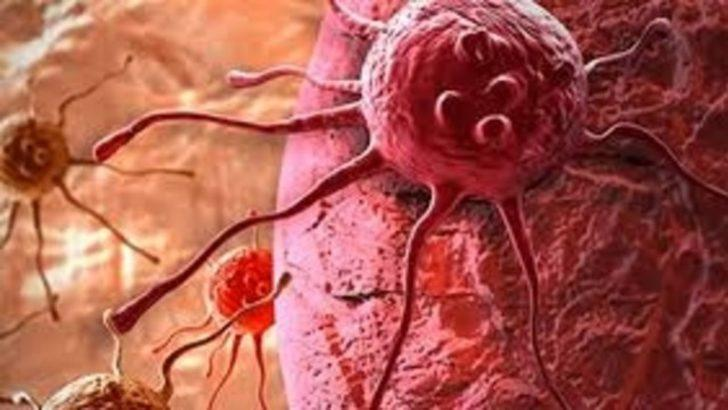 Kanser tedavisinde biorezonans desteği
