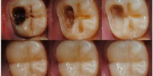Diş çürümesinin önüne geçecek doğal yöntemler