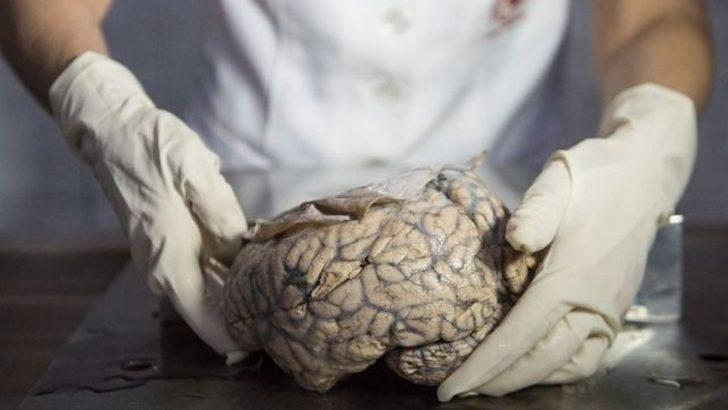 'Sinir bozucu meslektaş beyin için harika'