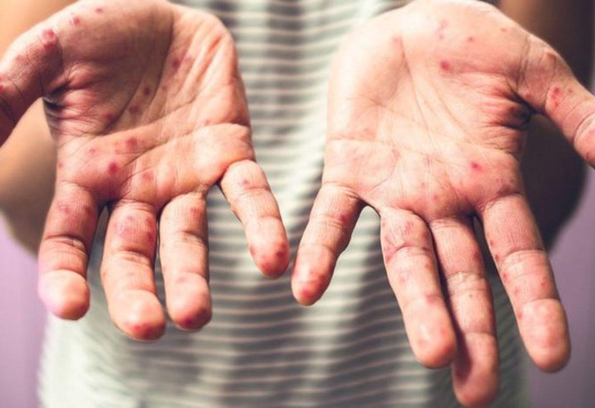Çocuğunuz el, ayak hastalığına yakalanırsa?