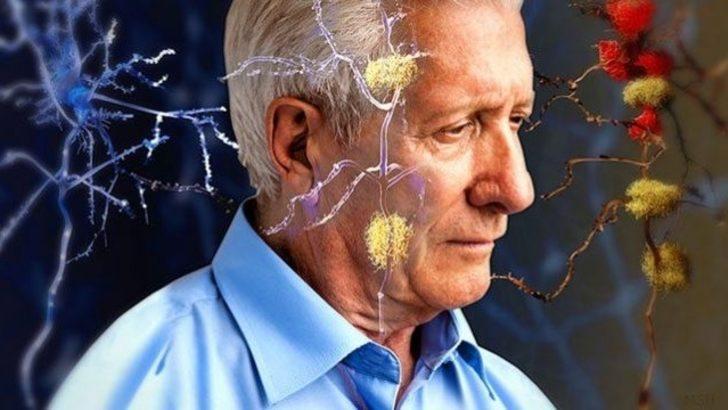 Alzheimer'den değil, geç kalmaktan kork!