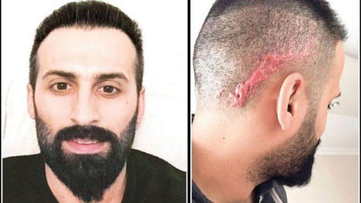 Saç ekimi istedi, kafasında keloid denilen yara izi oluştu
