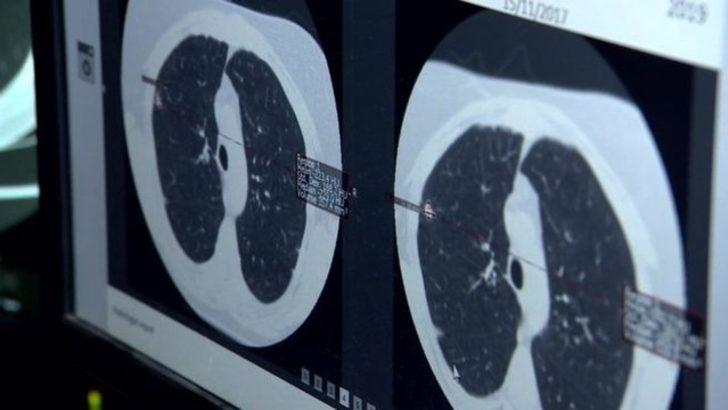 İngiltere'de kalp hastalıkları ve akciğer kanseri yapay zeka ile teşhis edilecek