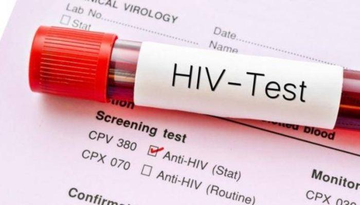Diyarbakır'daki HIV skandalı nikâh öncesi yaptırılması zorunlu testleri gündeme getirdi