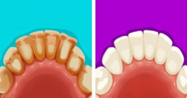 Diş problemlerinden kurtulmanın doğal ve basit yolları