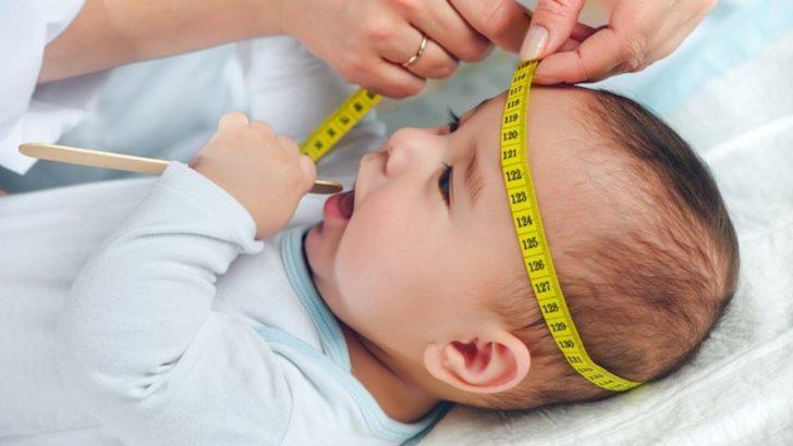 628f33f24be Anneler dikkat! Bebeğinizin kafası normalden büyükse... - Sağlık ...