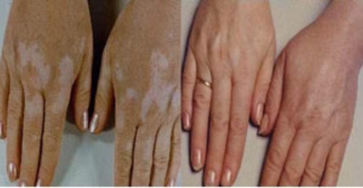 Vitiligo tedavisinde Bclear devri