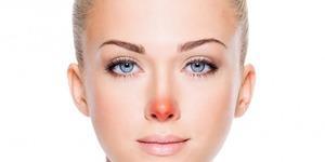 Yüzünüzdeki problemler iç sağlığınızı ele veriyor