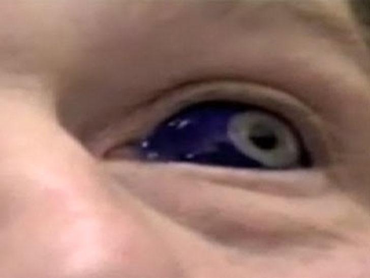Gözlerinin 'içinde' dövme var!