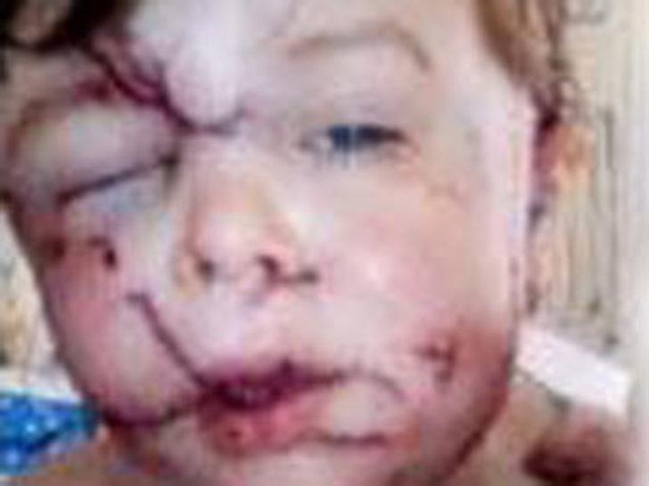 Köpek, çocuğun yüzünü parçaladı