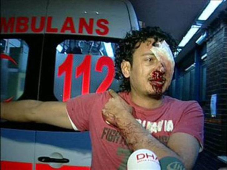 Taksim Hastanesi'nde muhalif Libyalı şoku!