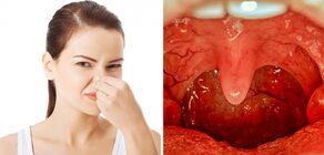 Dişlerinizi düzenli fırçalıyor, ancak hala nefesiniz kokuyorsa...