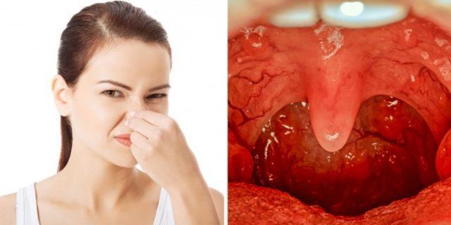 Dişlerinizi düzenli fırçalasanız bile hala nefesiniz kokuyorsa...