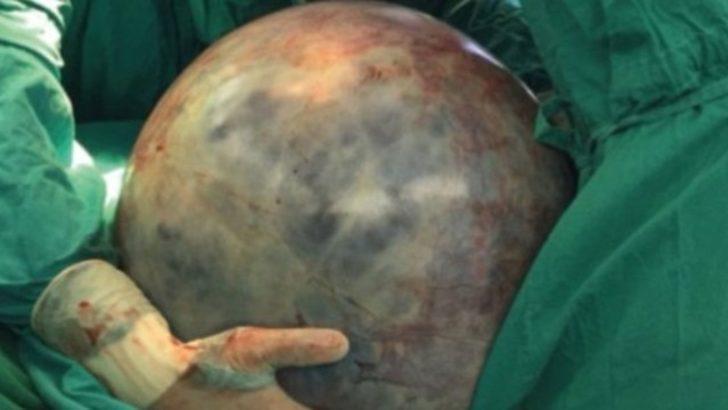 Meksikalı kadının karnından 34 kiloluk 'rekor' tümör çıktı