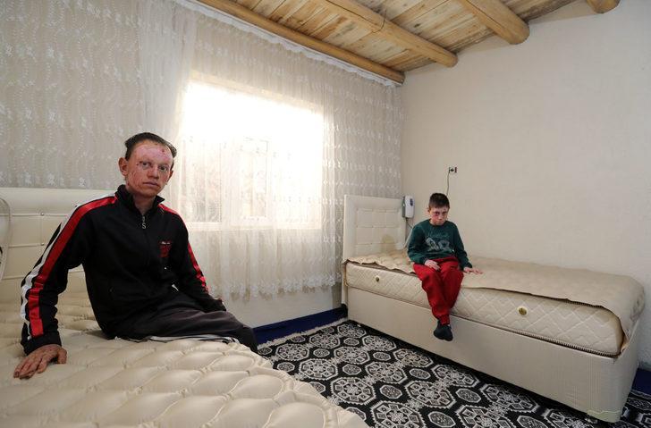Kelebek hastası kardeşlere özel tasarım yatak hediye edildi