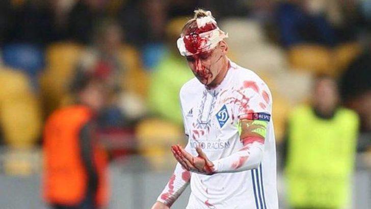 Domagoj Vida beyin sarsıntısı geçirdi