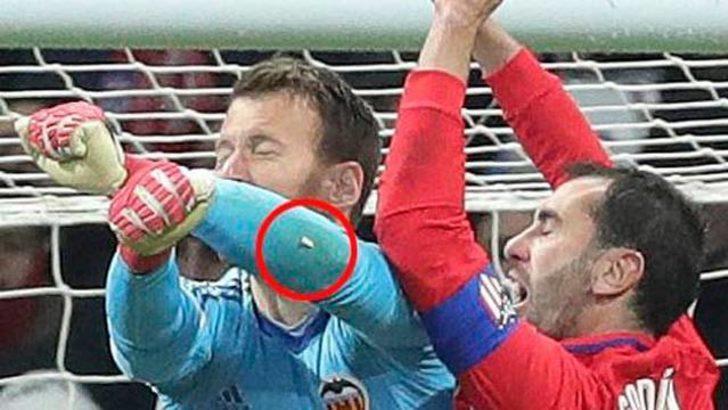 Diego Godin'in dişi kırıldı!