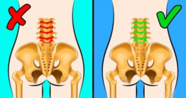 Şiddetli sırt ağrılarından kurtulmak için bu yöntemleri uygulayın