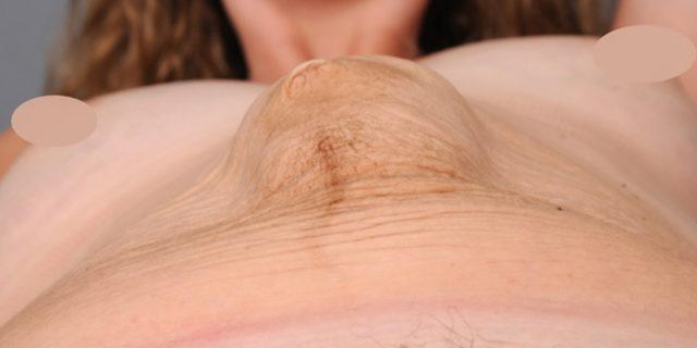 Doğum sonrası deformasyonlar: Diastasis recti