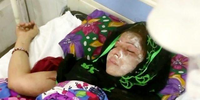 Erkek çocuk doğurmadı diye karısının yüzüne asit attı!