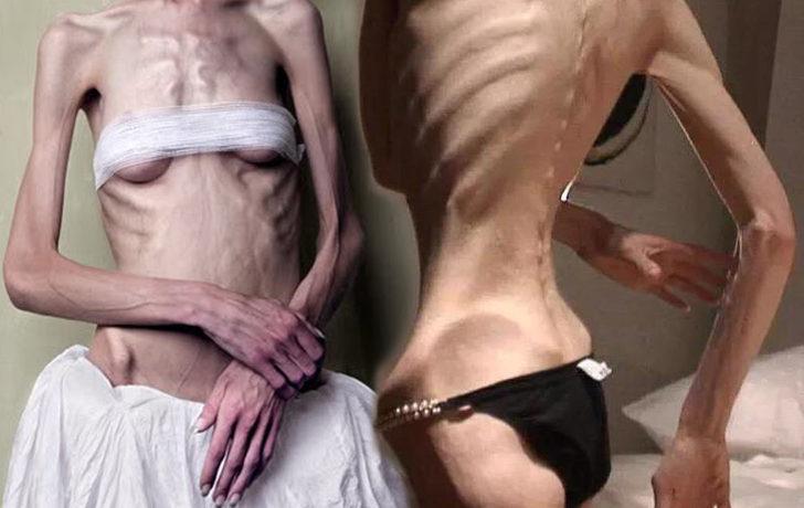 Obeziteden günümüz hastalığı Ortoreksiya'ya nasıl geldik?
