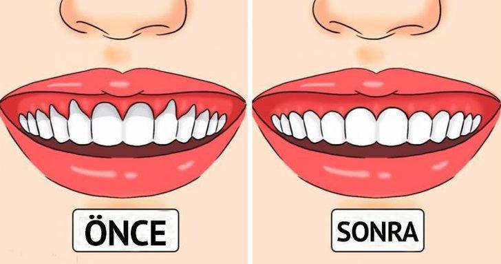 Bu çözümler diş etlerinizi daha sağlıklı hale getirecek