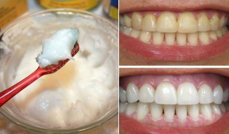 Dişlerinizi saniyeler içinde beyazlatan 4 doğal reçete