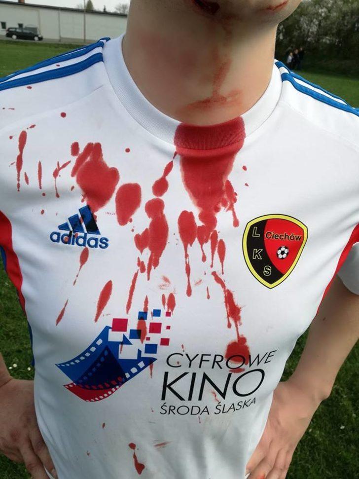 Ev sahibi Piast Lutynia'nın taraftarları sahaya girerek LKS Ciechow futbolcularına ve teknik heyetine saldırdı.