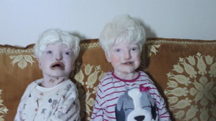 Mardin'de doğuştan albino hastalığıyla dünyaya gelen kardeşler yardım bekliyor!
