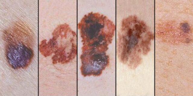 Masum göründüklerine bakmayın! Vücudumuzda bulunan hangi benler kanser riski taşıyor?