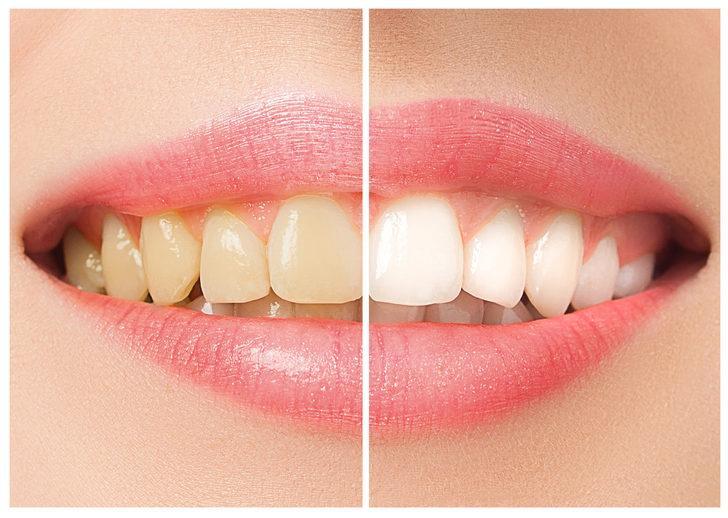 Evde En Iyi Diş Beyazlatma Yöntemleri