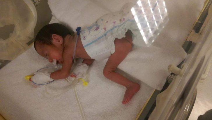 690 gram doğdu, hayata tutundu