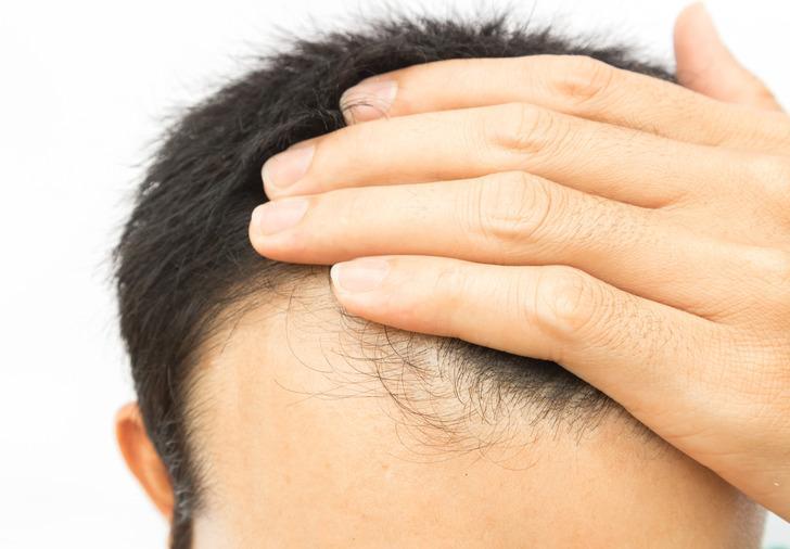 Saç sıklaştırma ekim teknikleri nelerdir?