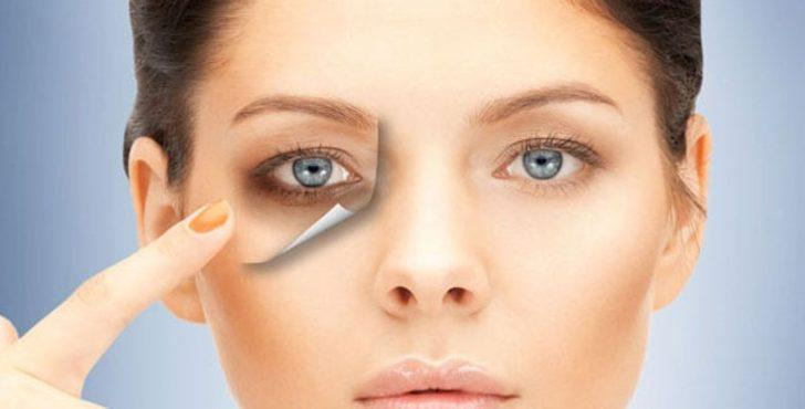 Göz altı morlukları için 8 öneri