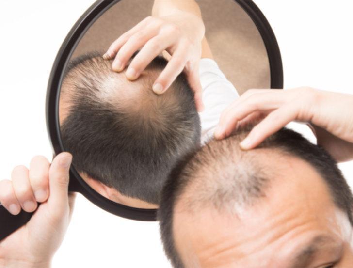 Saçlarınızın elinizden kayıp gitmesine izin vermeyin!