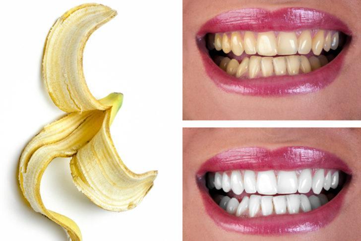 Dişleri beyazlatmak için
