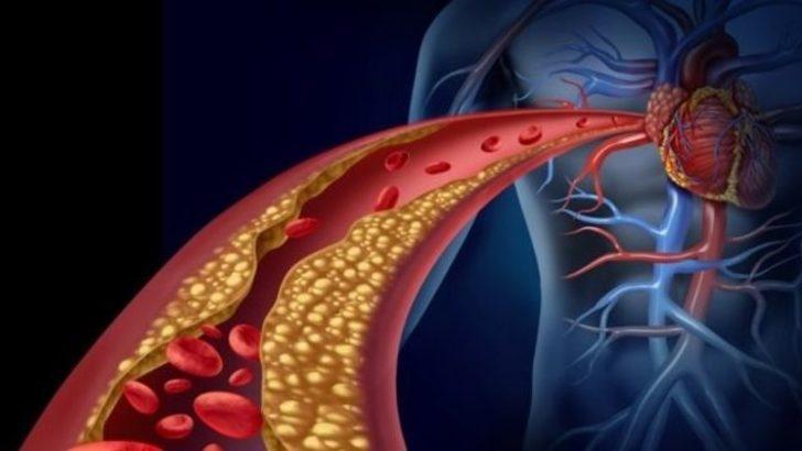 Kolesterol belirtileri nelerdir, kolesterol neden olur?
