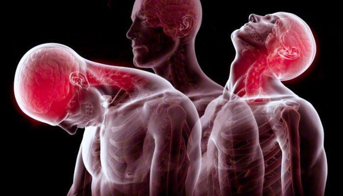 Boyun Düzleşmesi Belirtileri