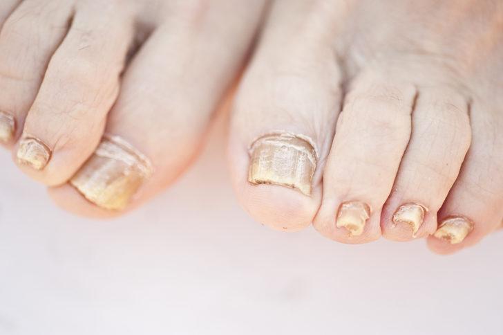 Sarı ayak tırnakları