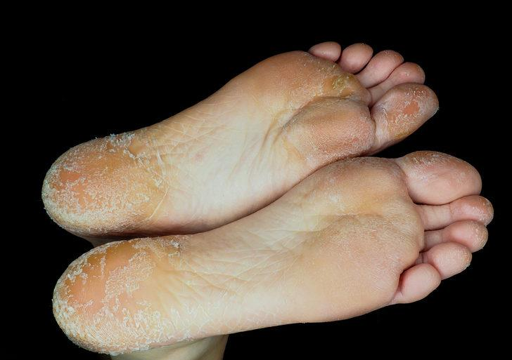 Pullu ayaklar