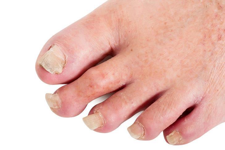 Deforme olan ayaklar