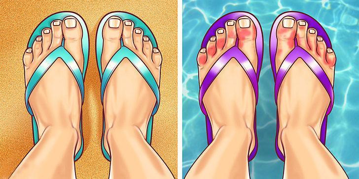Ayak parmaklarının renk değiştirmesi