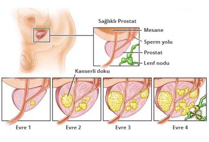 prostat kanseri evreleri nasıl anlaşılır
