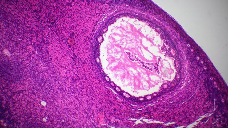 Kanser hastaları yapay yumurtalıklarla çocuk sahibi olabilecek mi?