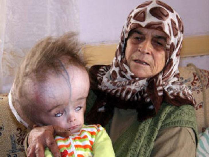 Hidrosefali hastası Eren kurtarılamadı