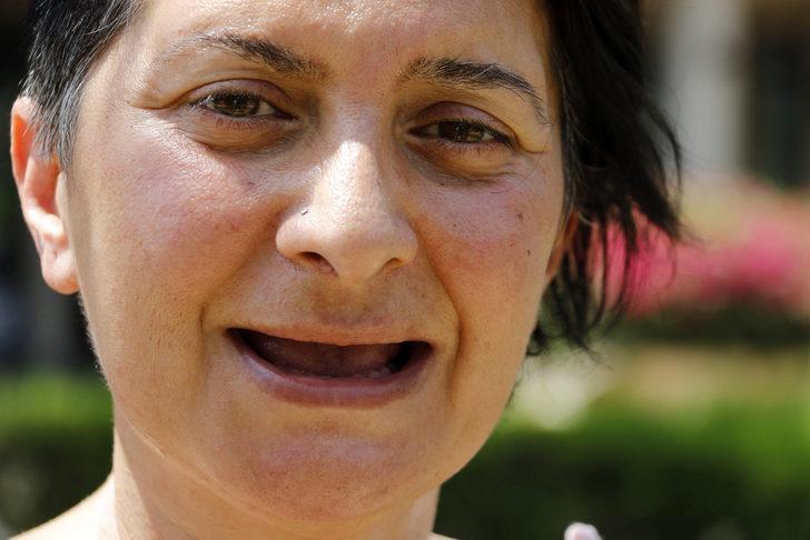 Tüm dişlerini kaybeden Öztürk: Acı içinde yaşıyorum
