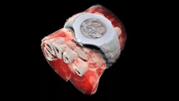 Renkli ve 3 boyutlu röntgen dönemi başlıyor