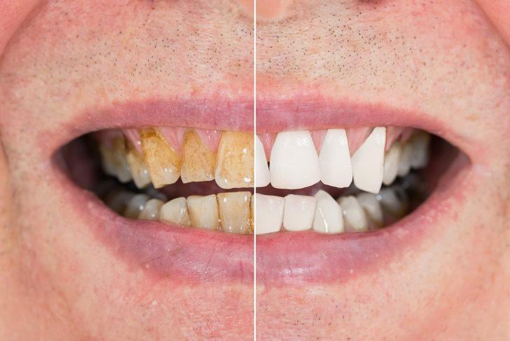 Her evde bulunan bu iki malzeme ile dakikalar içinde beyaz dişlere kavuşun
